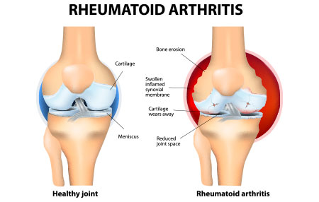 side by side comperison of a healthy joint and rheumatoid arthritis