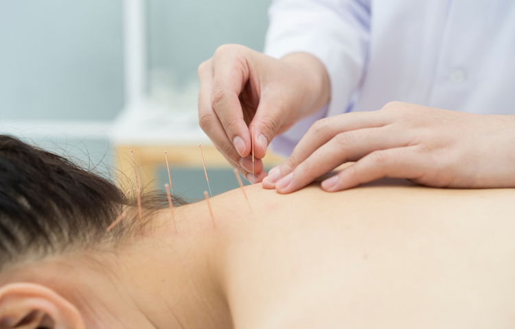 women laying on her stomach getting acupuncture treatment